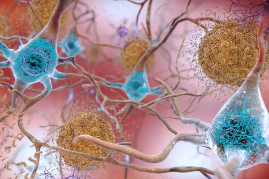Beta-Amyloid Plaques and Tau in the Brain-creditNIH-publicdomain_AUG2019
