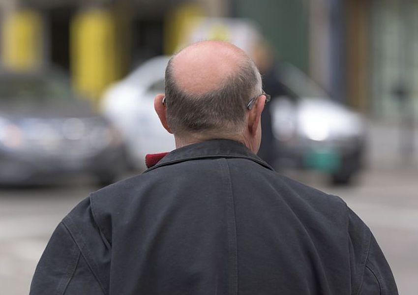 bald-men-link-covid-19-PIXABAY-Kaicho20